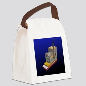 Skin cross-section, artwork Canvas Lunch Bag