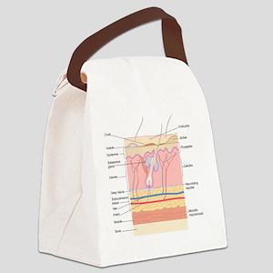 Skin disorders, artwork Canvas Lunch Bag