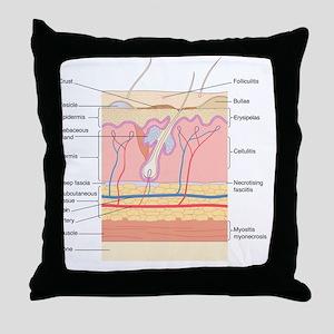 Skin disorders, artwork Throw Pillow