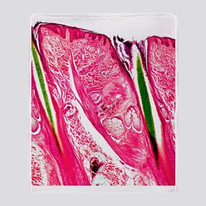 Skin section, light micrograph Throw Blanket