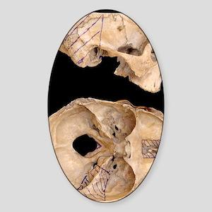 Craniofacial surgery approaches Sticker (Oval)
