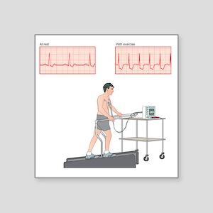 "Cardiac stress test, artwor Square Sticker 3"" x 3"""
