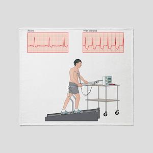 Cardiac stress test, artwork Throw Blanket