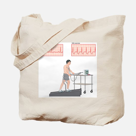 Cardiac stress test, artwork Tote Bag