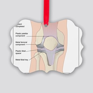 Knee replacement, artwork Picture Ornament