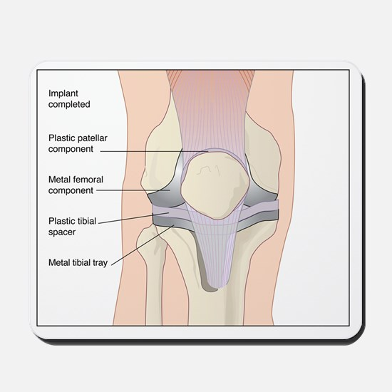 Knee replacement, artwork Mousepad