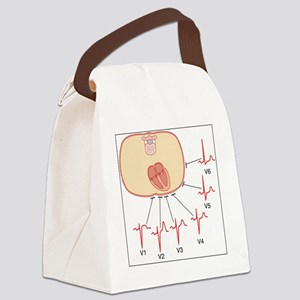 Placing of electrodes for ECG, ar Canvas Lunch Bag