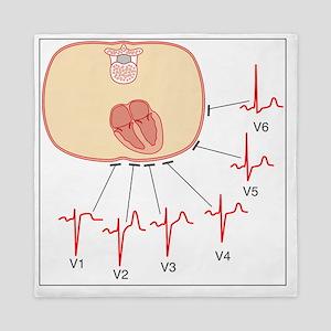 Placing of electrodes for ECG, artwork Queen Duvet
