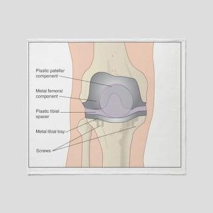 Knee after knee replacement, artwork Throw Blanket