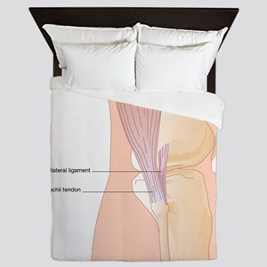 Knee in lateral view, artwork Queen Duvet