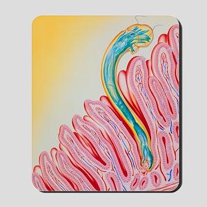 Artwork of hookworm clinging to intestin Mousepad