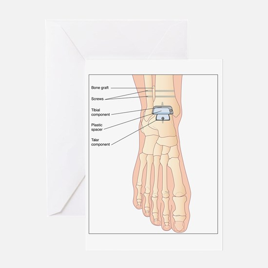 Replacement ankle joint, artwork Greeting Card