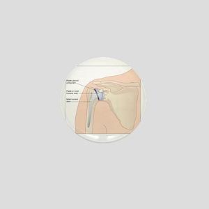 Shoulder replacement, artwork Mini Button