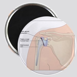 Shoulder replacement, artwork Magnet
