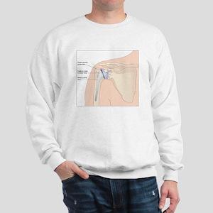 Shoulder replacement, artwork Sweatshirt