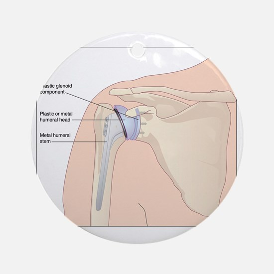 Shoulder replacement, artwork Round Ornament