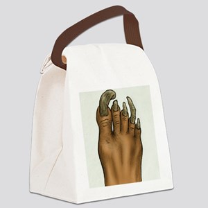 Pedicure Emergency Canvas Lunch Bag