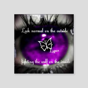 "Through the eye of lupus Square Sticker 3"" x 3"""