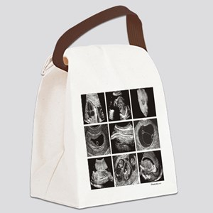 Fetal ultrasound images Canvas Lunch Bag