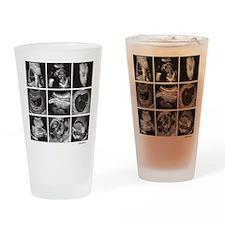 Fetal ultrasound images Drinking Glass