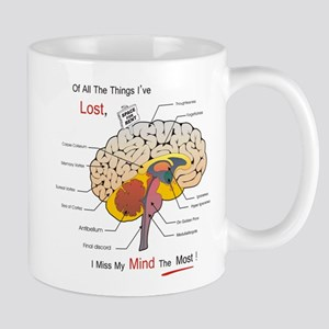 I miss my mind Mugs