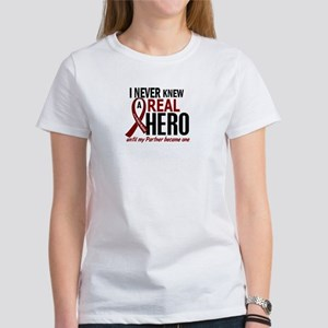 Multiple Myeloma Real Hero 2 Women's T-Shirt
