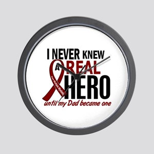 Multiple Myeloma Real Hero 2 Wall Clock