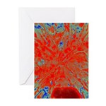 Action flower Greeting Cards