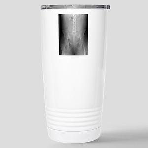 Swallowed toothbrush, X Stainless Steel Travel Mug