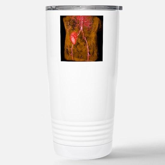 Iliac artery stenosis,  Stainless Steel Travel Mug