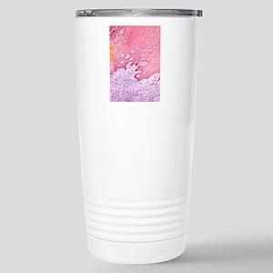 Gingivitis, light micro Stainless Steel Travel Mug