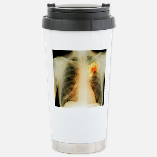 Lung abscess, X-ray Stainless Steel Travel Mug