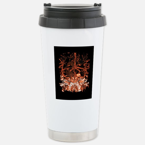 Berry aneurysm, angiogr Stainless Steel Travel Mug