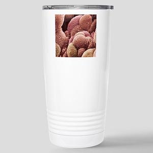 Ovarian cancer cells, S Stainless Steel Travel Mug