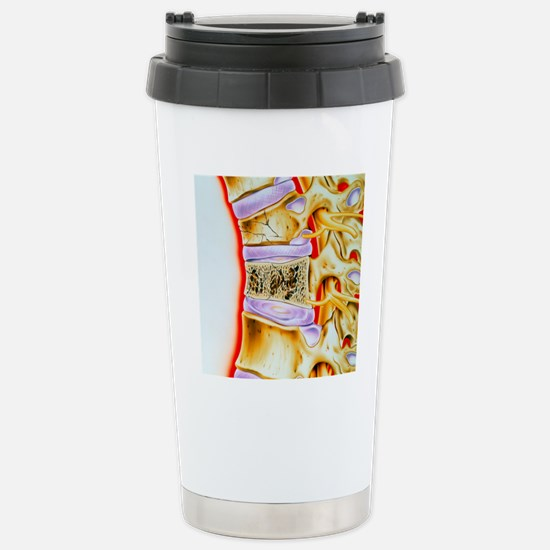 Osteoporitic spine Stainless Steel Travel Mug
