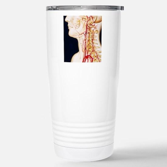 Vascular diseases Stainless Steel Travel Mug