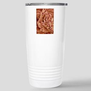 Eczema, SEM Stainless Steel Travel Mug