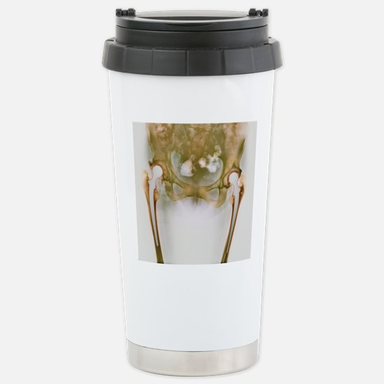 Double hip replacement, Stainless Steel Travel Mug