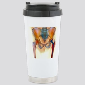 Hip joint replacement,  Stainless Steel Travel Mug