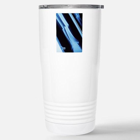 Lower leg fracture, X-r Stainless Steel Travel Mug