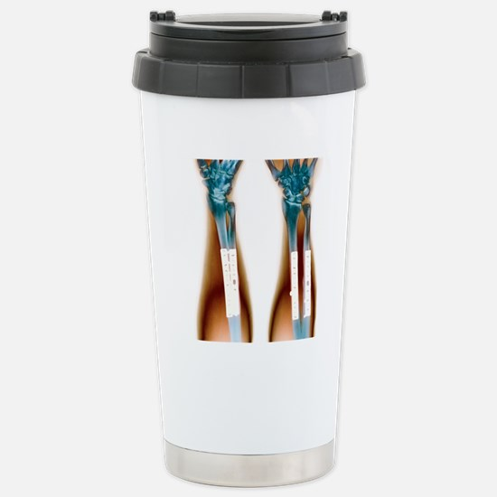 Pinned broken arm, X-ra Stainless Steel Travel Mug