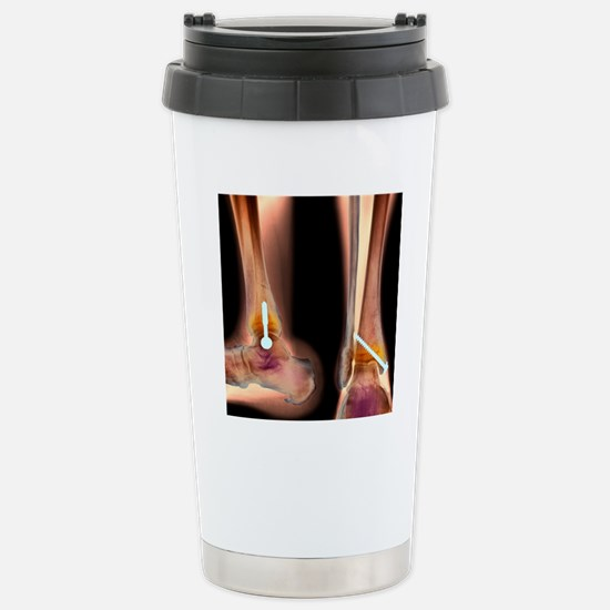 Pinned ankle fracture,  Stainless Steel Travel Mug