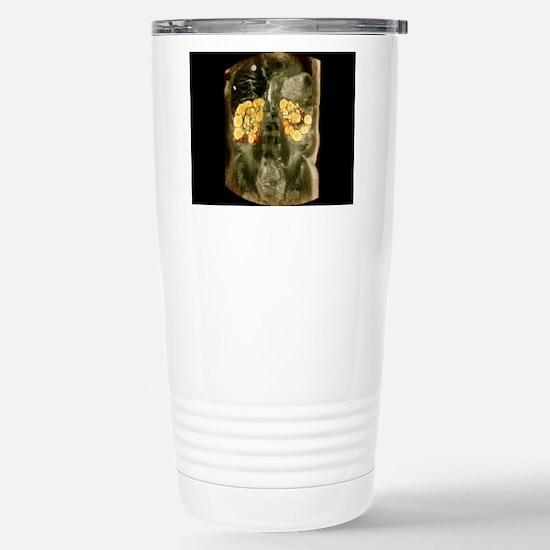 Polycystic kidneys, MRI Stainless Steel Travel Mug