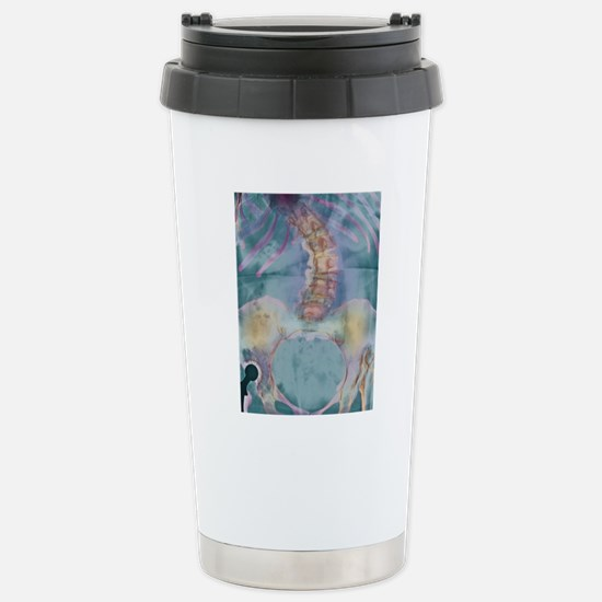 Scoliosis spine deformi Stainless Steel Travel Mug