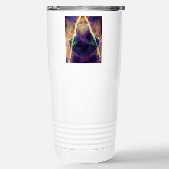 Coloured X-ray of iliac Stainless Steel Travel Mug