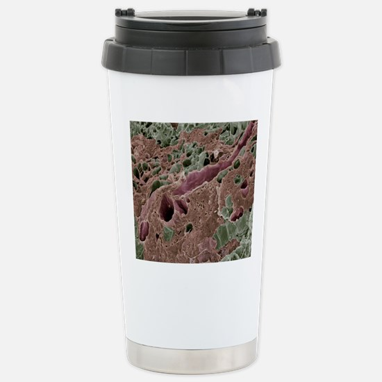 Lactating breast tissue Stainless Steel Travel Mug