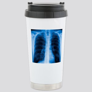 Normal chest X-ray Stainless Steel Travel Mug