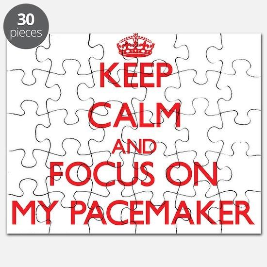 Unique Pacemaker Puzzle