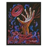 Hope - Sickle Cell Art Small Poster