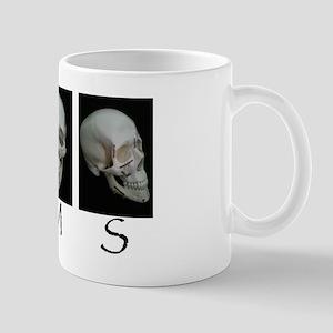 OMS surgical skull Mug